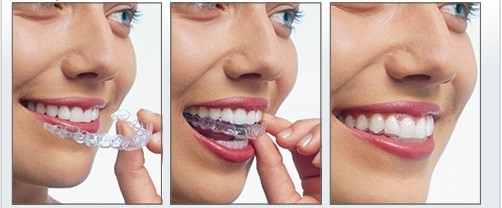 Ottawa-Dentists-Invisalign-4.jpg